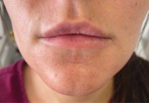 Before Dermal Fillers  (lips)
