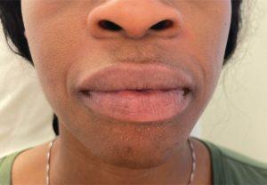 Before Dermal Fillers  (Smile Lines)
