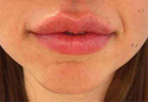 After Dermal Fillers  (lips)